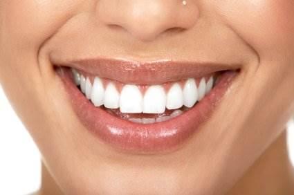 Стоит ли отбеливать зубы