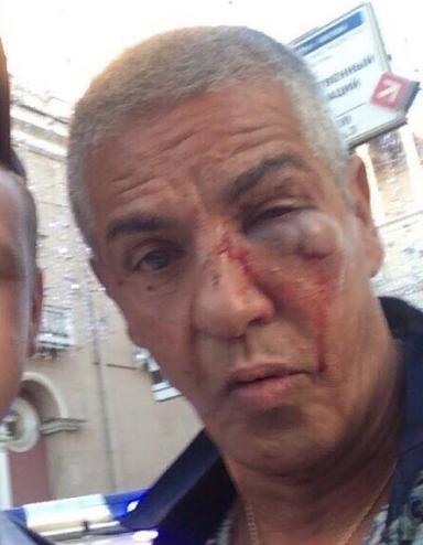 Сами Насери избили