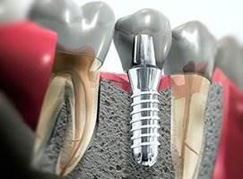 Имплантация зубов. Советы стоматологов при уходе.