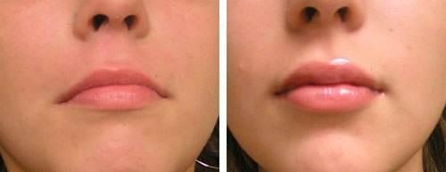 Surgiderm с нежностью заботится о вашей коже и беспощадно удаляет глубокие морщины